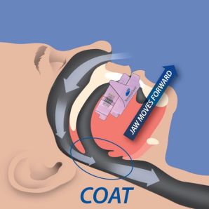 Open Airway Therapy